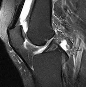 МРТ при боли в колене