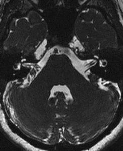 МРТ мостомосжечковый угла