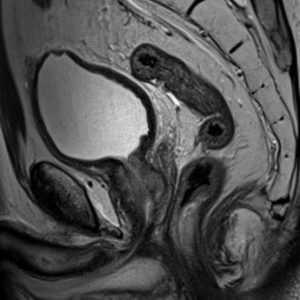 МРТ мочевого пузыря