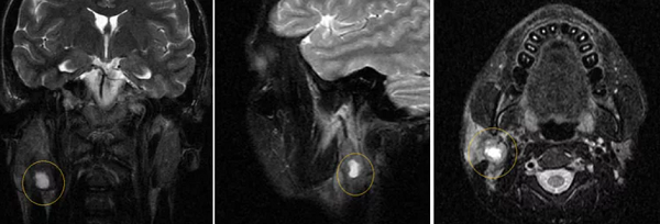 Преимущества МРТ слюнных желез