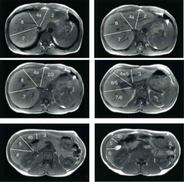 Сегменты печени на МРТ
