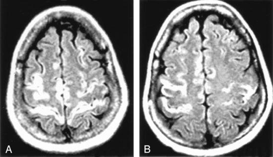 Покажет ли МРТ головного мозга энцефалит