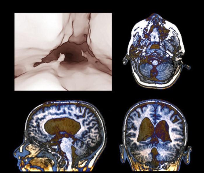 Состояние после оперативного вмешательства: эндоскопической трицистерновентрикулостомии