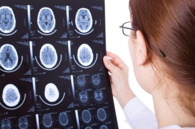 Как выглядит гидроцефалия на снимках МРТ