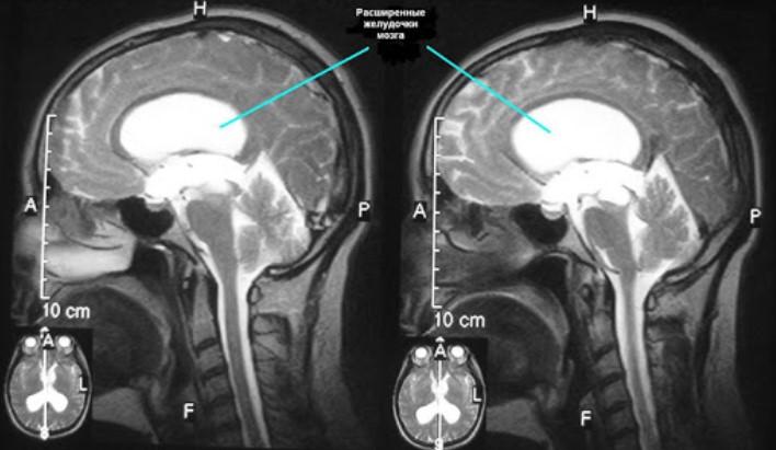 МРТ головного мозга. На МР-томограмме в сагиттальной плоскости отмечается расширение боковых желудочков мозга