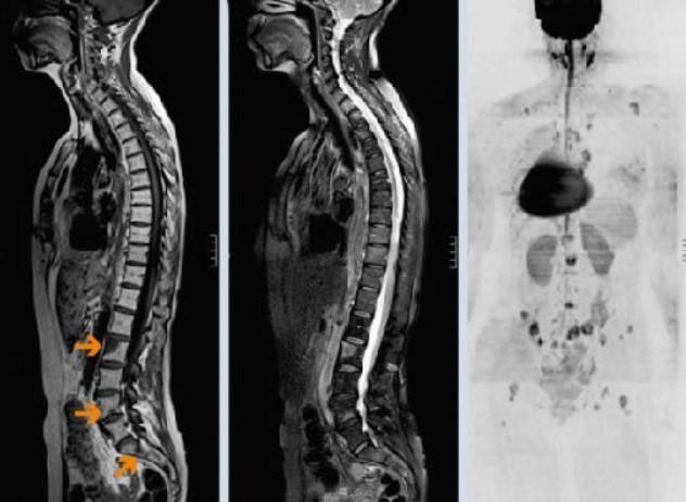 МРТ грудного и поясничного отделов позвоночника в сагиттальной плоскости. Отмечаются участки вторичного поражения