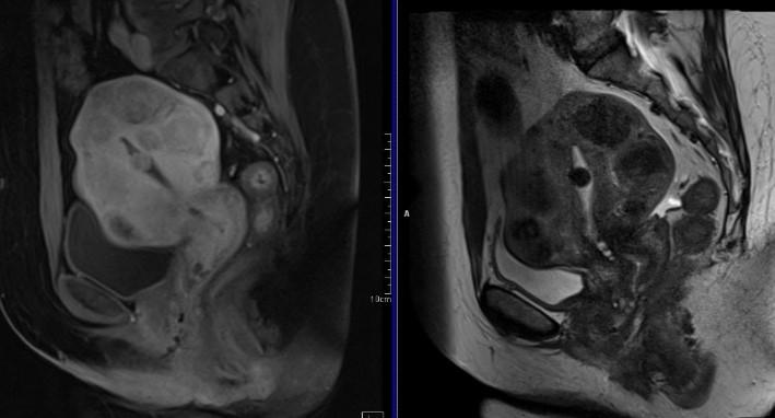 МРТ малого таза. На МРТ малого таза в сагиттальной плоскости отмечается деформация матки за счет множественных миоматозных узлов гиалиновой дегенерации