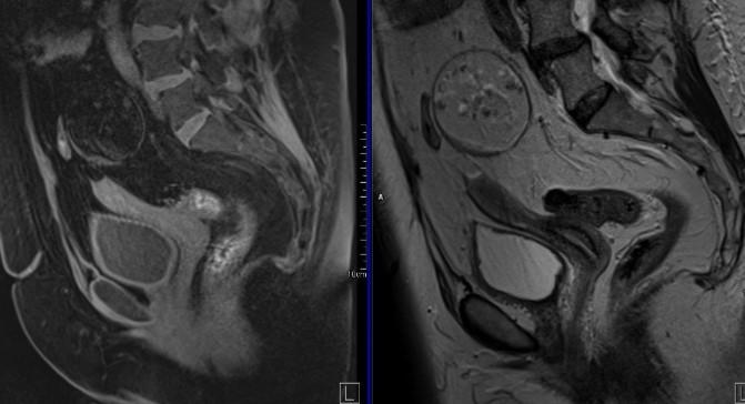 МРТ малого таза. На МРТ малого таза в сагиттальной плоскости отмечается увеличение размеров левого яичника