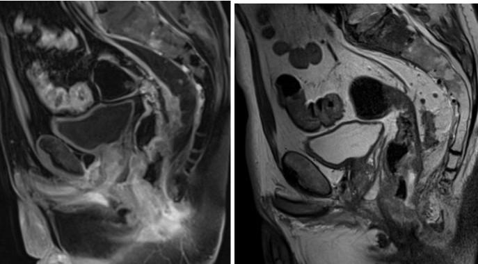 МРТ малого таза. На МРТ малого таза в сагиттальной плоскости отмечается объемное образования нижнеампулярного отдела прямой кишки