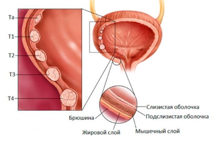 Покажет ли МРТ рак мочевого пузыря