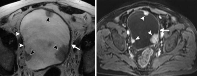 Как выглядит рак мочевого пузыря на МРТ