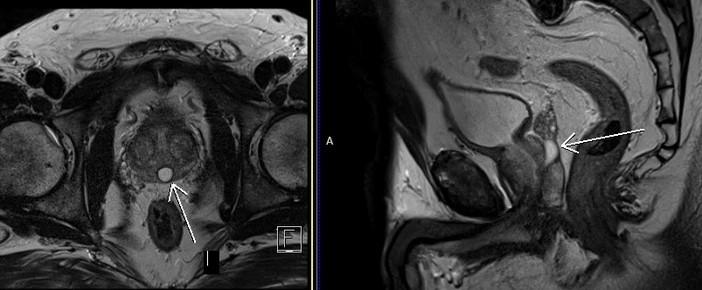 МРТ предстательной железы. На МР-томограммах в сагиттальной и аксиальной плоскостях в области маточки предстательной железы, по срединной линии визуализируется кистовидное образование