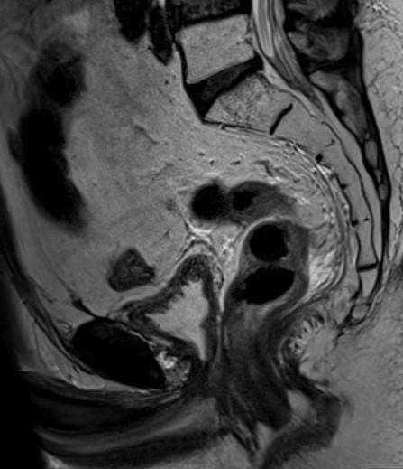 МРТ малого таза. На МР-томограммах в сагиттальной плоскости отмечается состояние после радикальной простатэктомии