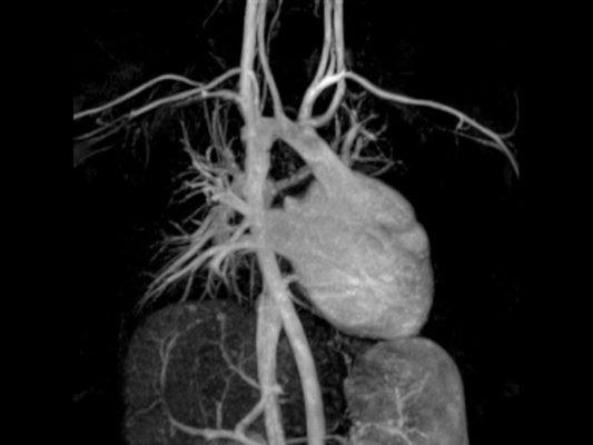 В чем опасность проведения МРТ людям с ЭКС