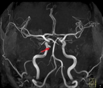 МРТ артерий головного мозга. На MIP-реконструкциях вдоль медиальной стенки инфраклиноидного отдела правой ВСА отмечается локальное выпячивание сосуда