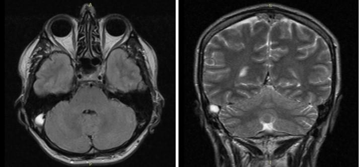 МРТ головного мозга. На МР-томограммах в аксиальной и корональной плоскости отмечается тромбоз сигмовидного синуса