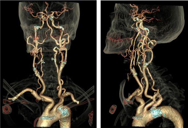 С помощью проведения МРТ артерий шеи можно обнаружить большое количество различных заболеваний сосудов