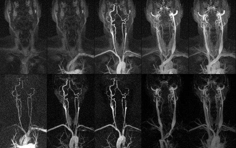 оказания для проведения МРТ сосудов шеи