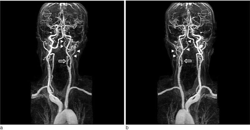 МРТ или УЗИ сосудов шеи, что лучше
