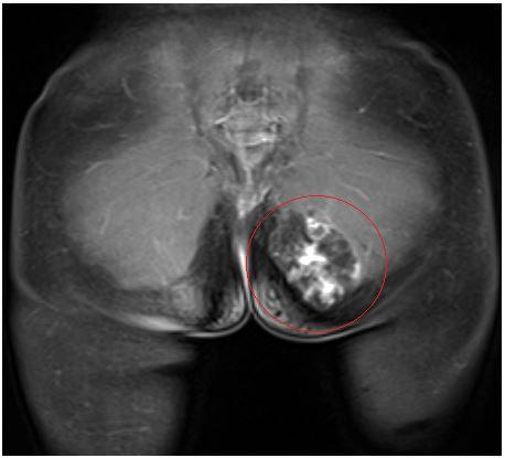 На корональной плоскости в структуре левой большой ягодичной мышцы и в подкожно-жировой клетчатке отмечается объемное образование