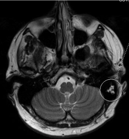 На мрт в аксиальной плоскости отмечается объемное образование внутреннего слухового прохода слева