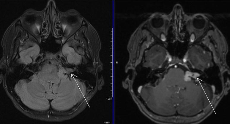 В аксиальной плоскости отмечается повышение интенсивности МР-сигнала в области ячеек сосцевидного отростка левой височной кости
