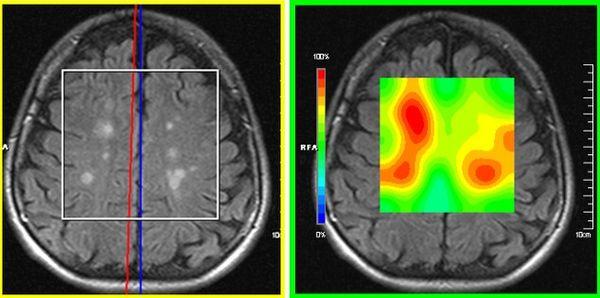 Какое МРТ делать при рассеянном склерозе