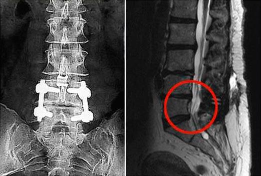 Показывает ли МРТ защемление нерва