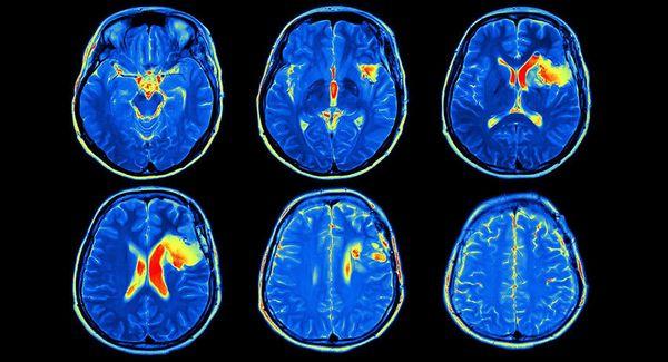 МРТ с контрастом