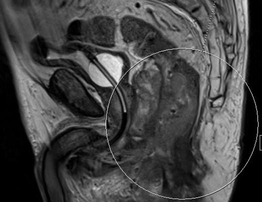 Подготовка к МРТ кишечника