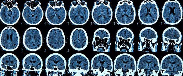 Болезнь Альцгеймера на МРТ