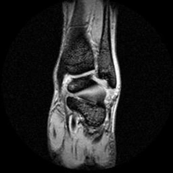 МРТ голеностопного сустава, как проходит