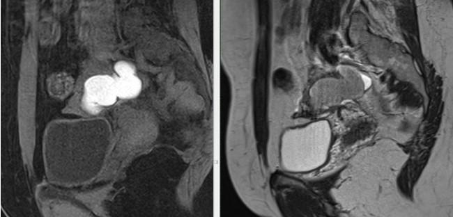 МРТ малого таза в сагиттальной плоскости