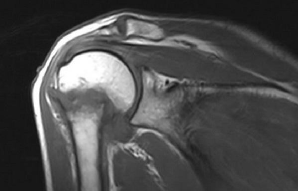 МРТ плечевого сустава в корональной плоскости