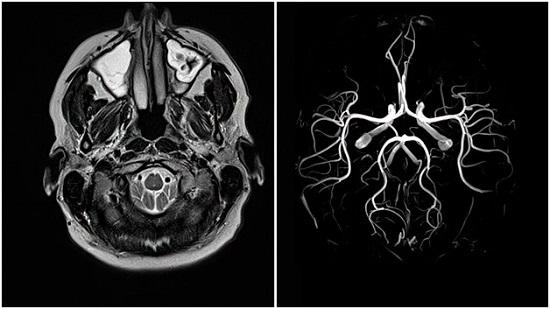 МРТ вен головного мозга