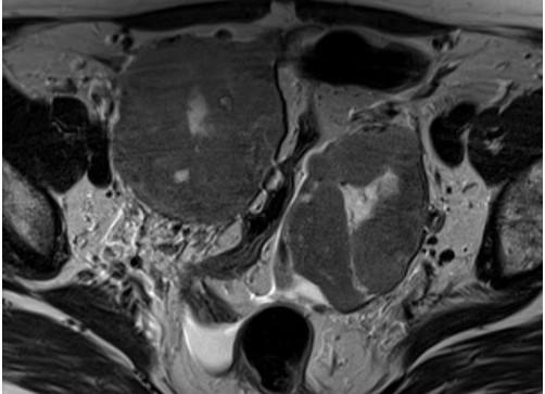 МРТ малого таза, аксиальная плоскость