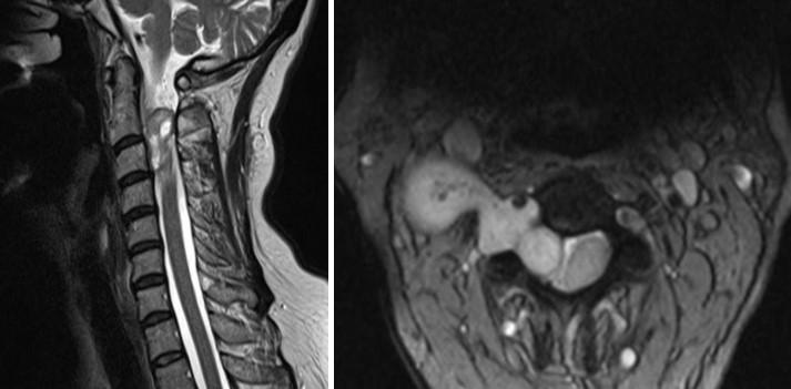 МРТ шейного отдела позвоночника в сагиттальной и аксиальной плоскостях