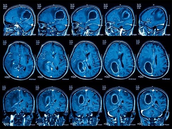 Как проходит процедура МРТ головного мозга