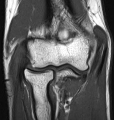 МРТ локтевого сустава в корональной плоскости
