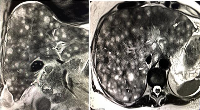 МРТ печени в аксиальной плоскости