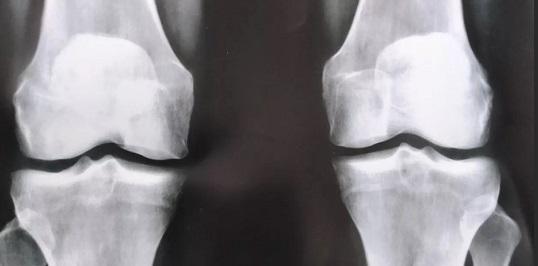 Рентген колена или МРТ что лучше