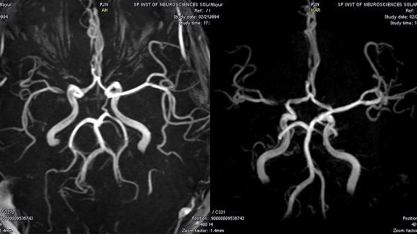 МР-сканирование в режиме ангиографии