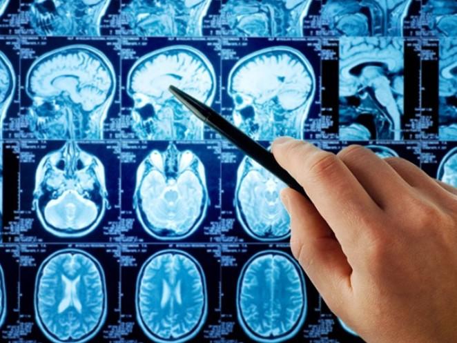 Когда назначают МРТ головы
