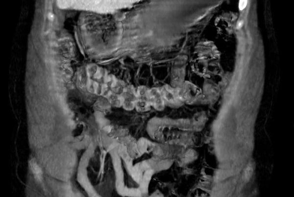 КТ или МРТ кишечника