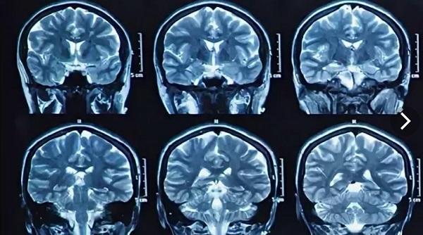 МРТ головного мозга детям – показания