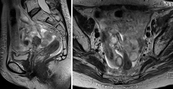 Подготовка к МРТ малого таза у женщин