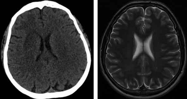 МРТ головы, что показывает