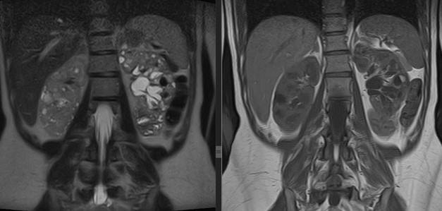 МРТ почек и надпочечников в корональной плоскости
