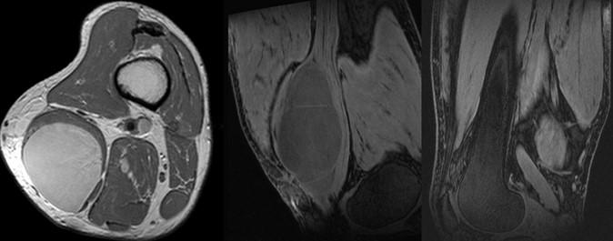 Расшифровка МРТ коленного сустава