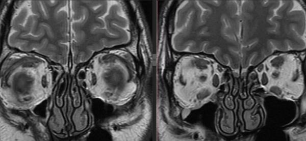 Противопоказания к магнитно-резонансной томографии глаза